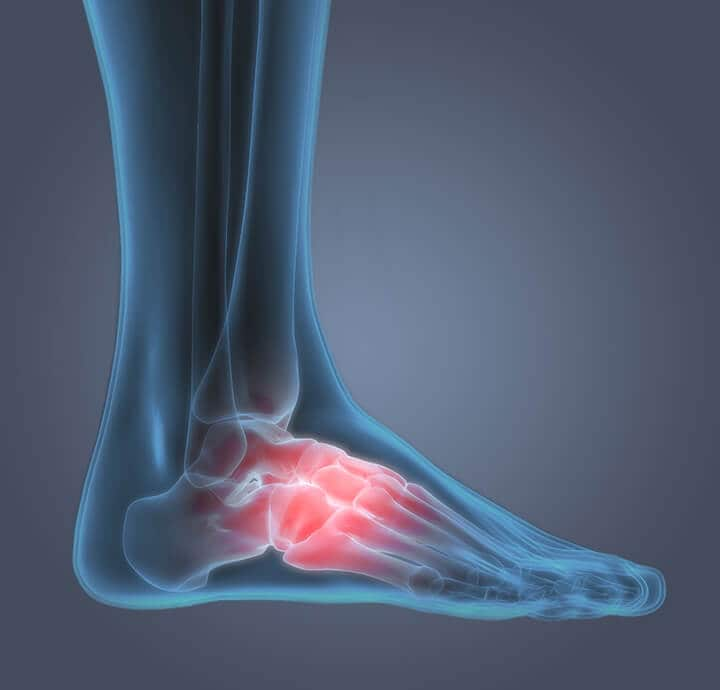 Symptoms & Conditions - Arch of Foot  Pain